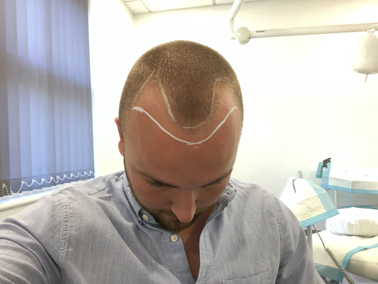 Hair Regrowth after a transplant