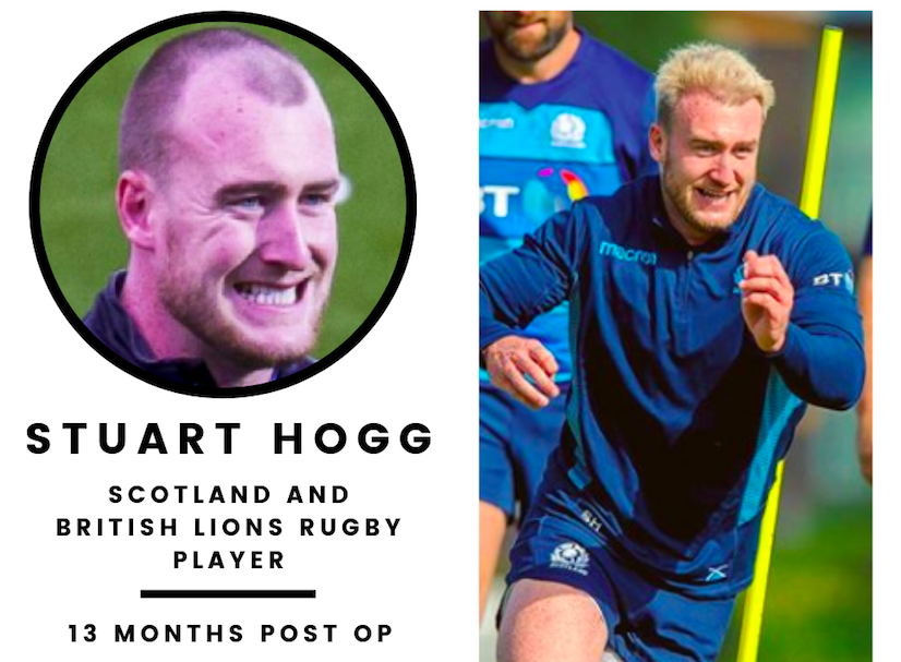 Stuart Hogg 13 months post his hair transplant at the KSL Clinic