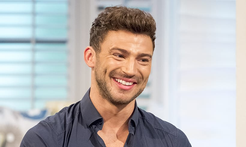 Jake Quickenden had a hair transplant at the KSL Clinic in August 2017
