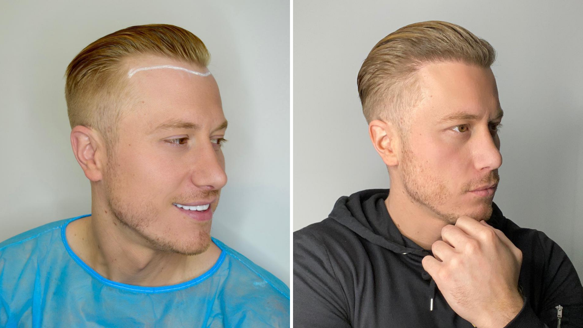 Hair Transplant after 3 months – what to expect