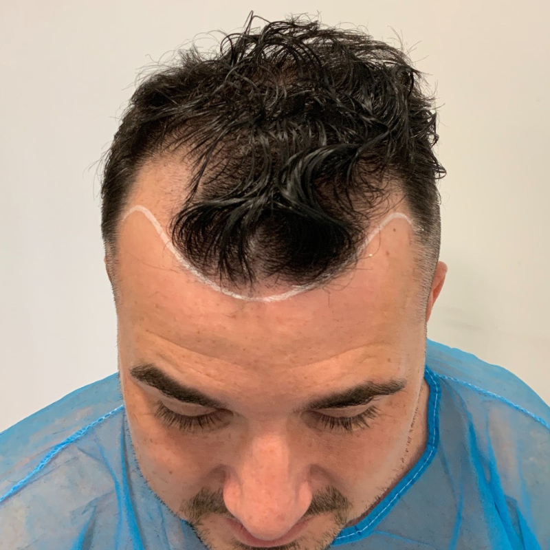 Hair Transplant after 1 Week – what to expect
